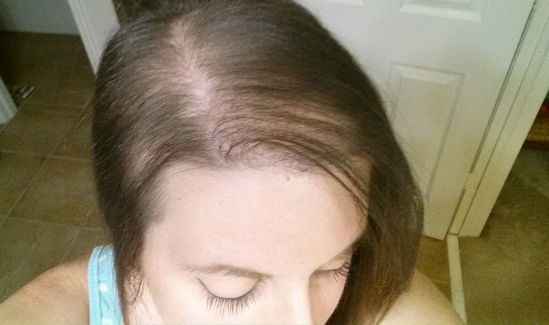 Early Bald Spots Warning Signs of Bad Hair Extensions